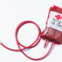 初めての輸血はヒツジの血で行われていた